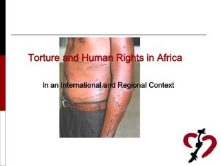 Torture and Human Rights in Africa