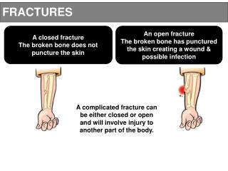 A closed fracture The broken bone does not puncture the skin