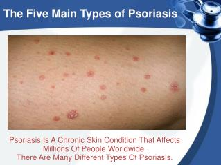 The Five Main Types of Psoriasis