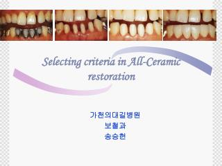Selecting criteria in All-Ceramic restoration