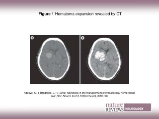 Figure 1  Hematoma expansion revealed by CT