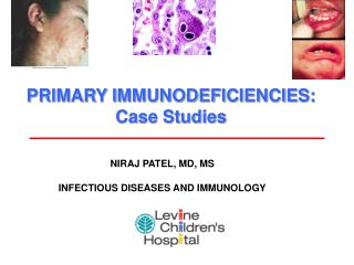 PRIMARY IMMUNODEFICIENCIES: Case Studies