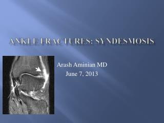 Ankle Fractures:  syndesmosis