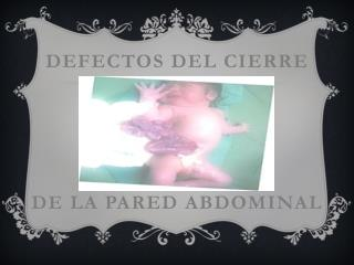 DEFECTOS DEL CIERRE DE LA PARED ABDOMINAL