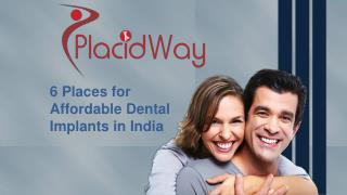 6 Places for Affordable Dental Implants in India