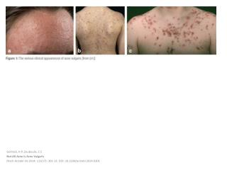 Gollnick , H P;  Zouboulis , C  C Not All  Acne  Is  Acne Vulgaris