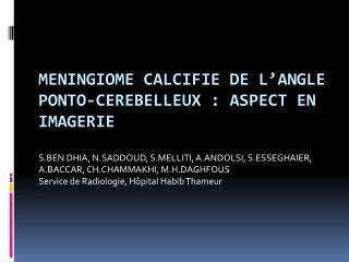 MENINGIOME CALCIFIE DE L'ANGLE PONTO-CEREBELLEUX: ASPECT EN IMAGERIE