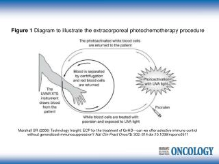Figure 1 Diagram to illustrate the extracorporeal photochemotherapy procedure