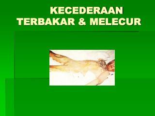KECEDERAAN TERBAKAR & MELECUR