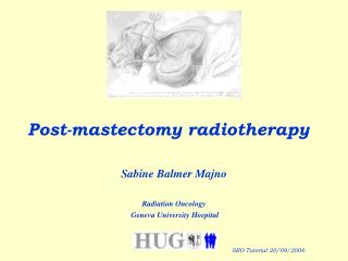 Post-mastectomy radiotherapy