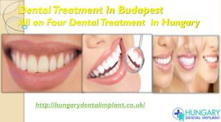 Dental Treatment In Budapest - All on Four Dental Treatment