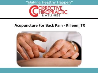 Acupuncture For Back Pain In Killeen, TX
