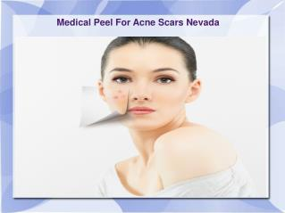 Medical Peel For Acne Scars Nevada