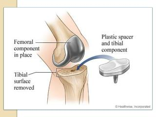 Affordable Knee Replacement Surgery India