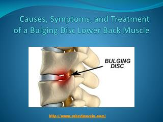 Causes, Symptoms, and Treatment of a Bulging Disc Lower Back