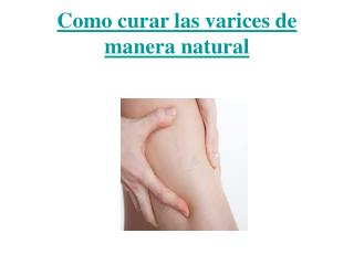 Como curar las varices de manera natural