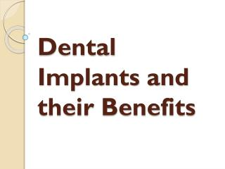 Dental Implants and their Benefits