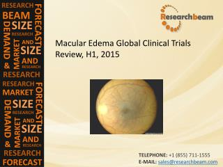 Macular Edema Global Clinical Trials Review, H1, 2015