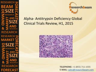 Alpha- Antitrypsin Deficiency Global Clinical Trials Review