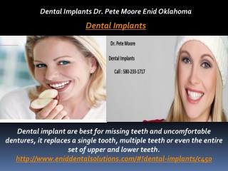 Dental Implants Dr. Pete Moore Enid Oklahoma