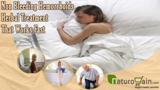 Non Bleeding Hemorrhoids Herbal Treatment That Works Fast