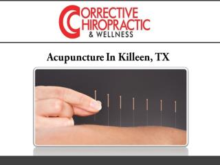 Acupuncture In Killeen, TX