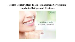 Dentzz Dental Offers Tooth Replacement Services like Implants, Bridges