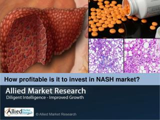 Nonalcoholic Steatohepatitis (NASH) Market