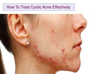 How To Treat Cystic Acne Effectively