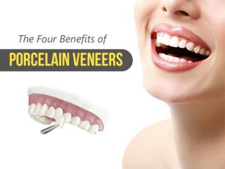 The Four Benefits of Porcelain Veneers