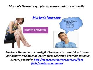 Morton's Neuroma symptoms, causes and cure naturally