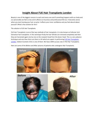 Insight About FUE Hair Transplants London