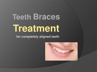 Teeth braces treatment for completely aligned teeth