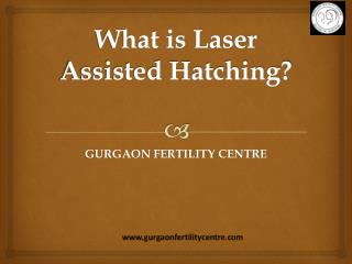 What is laser Assisted hatching