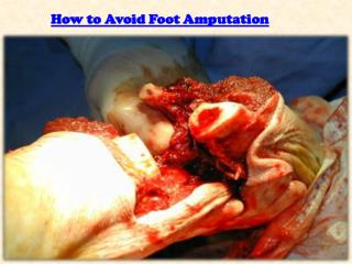 How to Avoid Foot Amputation