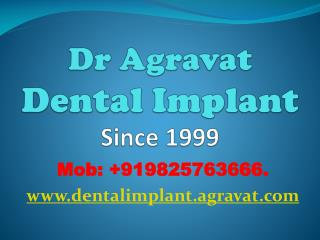 Dental Implants Ahmedabad India Affordable Best low costDent
