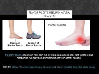 Plantar Fasciitis