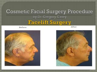 Facelift Surgery - Dr Gregory Casey