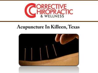Acupuncture In Killeen, Texas