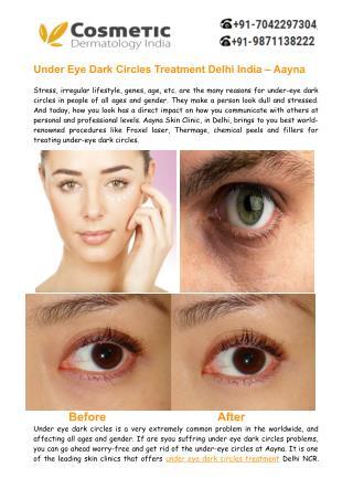 Under Eye Dark Circles Treatment Delhi, India– Aayna Clinics