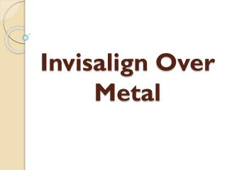 Invisalign Over Metal