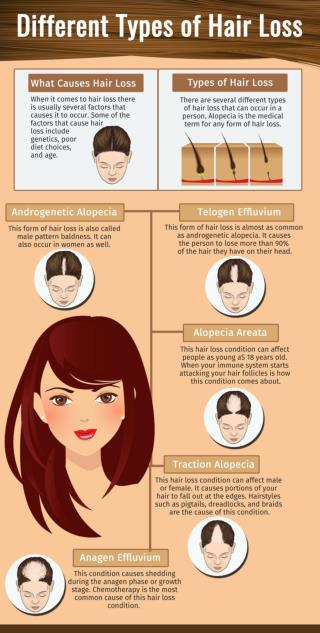 Different Types of Hair Loss