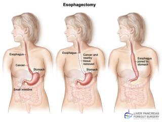 Esophageal cancer Treatment Florida