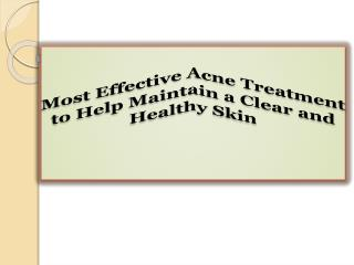 Most Effective Acne Treatment to Help Maintain a Clear and Healthy Skin