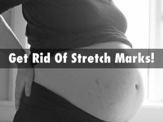 Stretch Marks - How to Get Rid Of Stretch Marks