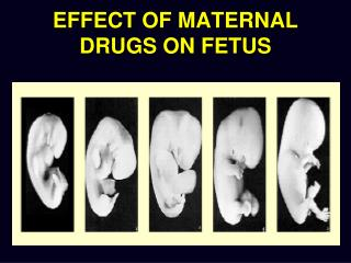 EFFECT OF MATERNAL DRUGS ON FETUS