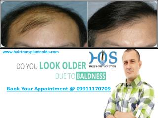 HOS Best Hair Transplant in Delhi