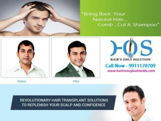 Permanent Hair Transplantation in Delhi