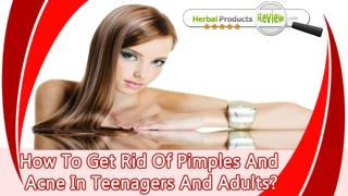 How To Get Rid Of Pimples And Acne In Teenagers And Adults?