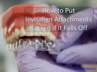How To put Invisalign attachments back in if it Falls Off